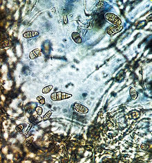 Alternaria alternata conidia.jpg