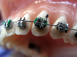Image Result For Braces Band Colors