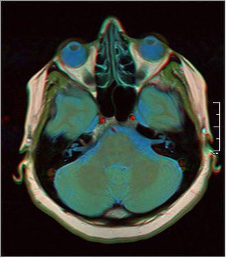 Magnetic resonance imaging of the brain - Image: Brain MRI 0230 15