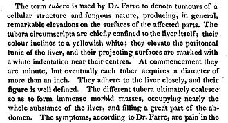 """American and British English spelling differences - An 1814 American medical text showing British English spellings that were still in use (""""tumours"""", """"colour"""", """"centres"""", etc.)."""