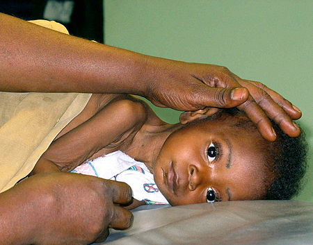 Child being prepared for lumbar puncture.jpg