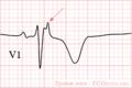 De-Epsilon wave (CardioNetworks ECGpedia).png