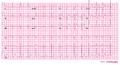 De-JJ00004 (CardioNetworks ECGpedia).png
