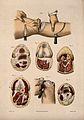 Diagrams illustrating cross-sections through the knee. Colou Wellcome V0016838ER.jpg