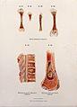 Diseased bones; syphilis, spondylitis, osteomyelitis, 1897 Wellcome V0010322EL.jpg