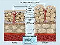 Formation of Cellulite.jpg