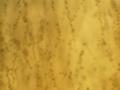 Gonatobotrys spores 40X.png