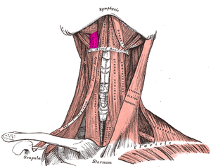 Hyoglossus - Muscles of the neck. Anterior view. Hyoglossal muscle in purple