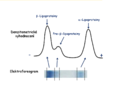 Lipoproteins - denzitometric and electrophoretic diagnosis.png