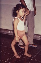 Child with a deformed right leg due to poliomyelitis
