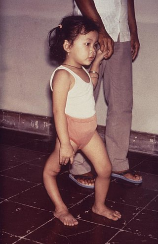 طفلة مصابة بتشوه في القدم اليمنى بسبب مرض شلل الأطفال