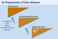 Progression of liver disease.png