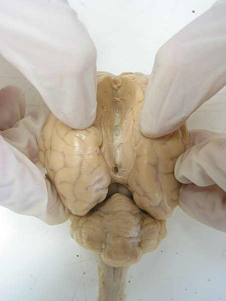File:Sheep Brain Dissection 2.jpg