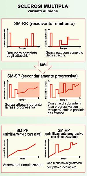 Italiano: sclerosi multipla varianti cliniche ...