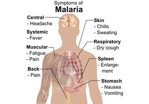 Symptoms of Malaria whitebackground.png
