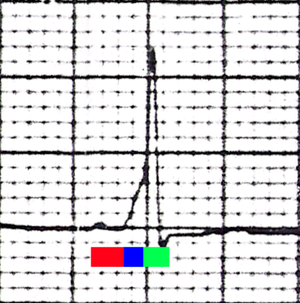 Characteristic EKG finding in WPW syndrome. Th...