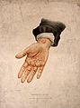 A hand with a skin disease on the palm and wrist. Coloured l Wellcome V0009863.jpg