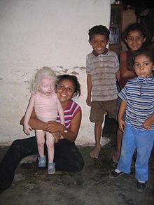 Негры альбиносы причина их рождения