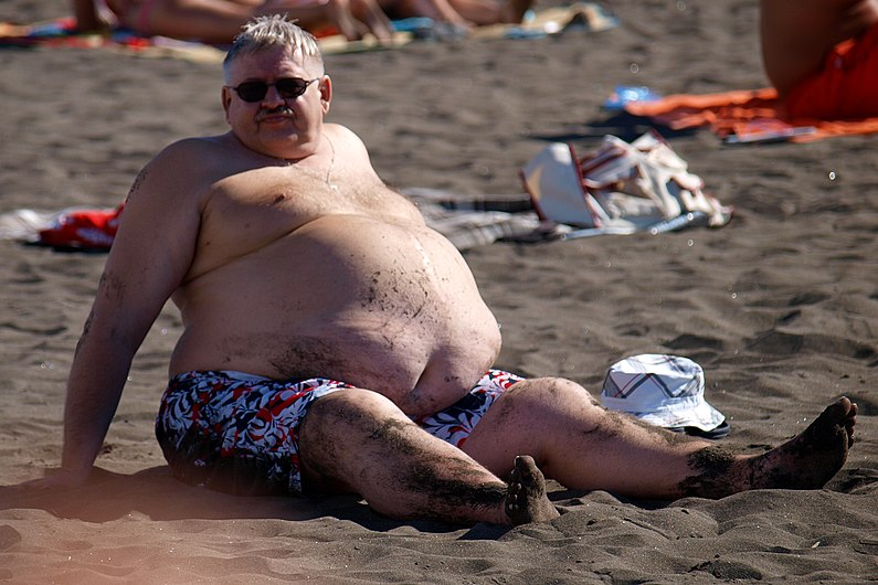 At the beach - male abdominal obesity.JPG