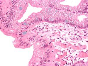 Glandular metaplasia