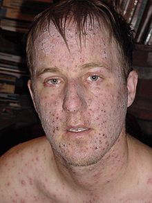 images of shingles on face #10