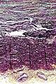 Cystic medial degeneration - movat - intermed mag.jpg
