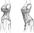 Deformation de la ligne de labdomen et des reins par le corset.png