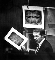 Souviron is seen in the courtroom. Several enlargements of dental x-rays have been pinned up, and he is holding one in his hand.