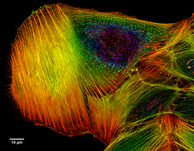 Confocal microscope image