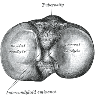 Medial condyle of tibia