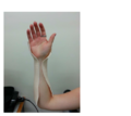 LTT moulded onto patient – hand-wrist section.png