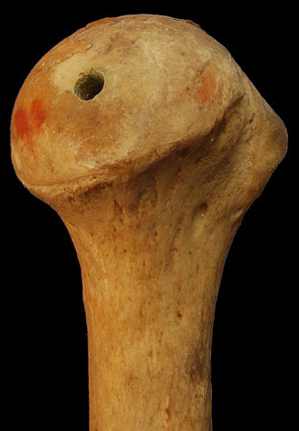 Upper extremity of humerus - Image: Medial Head Of Left Humerus