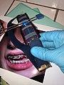ORTHODONTIC REVERSE-PULL HEADGEAR - FEMALE PATIENT 16 HOURS DAILY WEAR.jpg