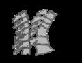 Osteoporosis vertebrae (Cleaned Up).png