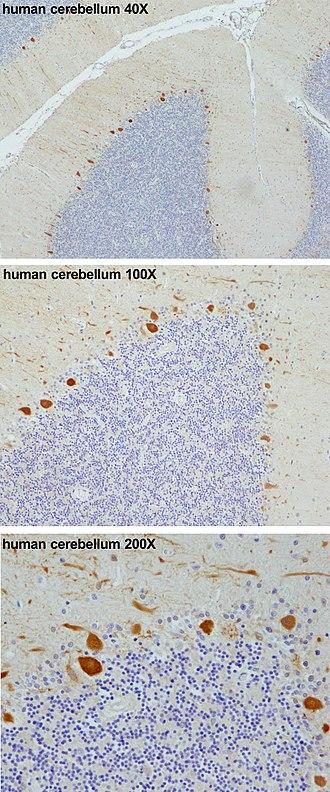 Purkinje cell - Image: PCP4 immunohistochemistry in human cerebellum