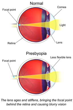 Presbyopia_eye_Diagram_eyes_Disorder_.com
