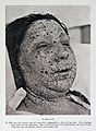 Pustular eruption of smallpox on face Wellcome L0032957.jpg