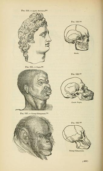 ヨシア・C・ノット(英語版)とジョージ・R・グリッドン(英語版)の著作「地球の土着人種」(1857年)より。黒人は知性において白人とチンパンジーの間に位置するとしている。