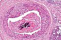 Salivary duct carcinoma - intermed mag.jpg