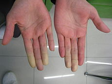 Secondary Raynaud's in Sjögren's syndrome 1.JPG