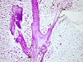 Small cell lung carcinoma-Azzopardi effect- Feulgen stain (7261944428).jpg