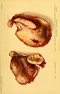 Treatise on gynaecology - medical and surgical (1894) (14593777120).jpg