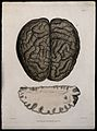A dissected brain; and a section of diseased brain. Coloured Wellcome V0009779ER.jpg
