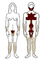 Distribution of androgenic hair on female and male body