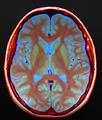 Brain MRI 133405 rgbca.png
