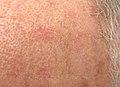 Close view of actinic keratosis.JPG