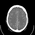 Computed tomography of human brain (21).png