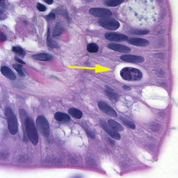 Cystoisospora belli oocyst in epithelial cell (hematoxylin and eosin).jpg