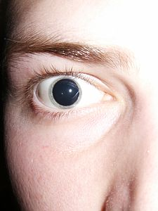 Dilated pupils 2006.jpg