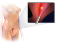 Endometrial Ablation.png